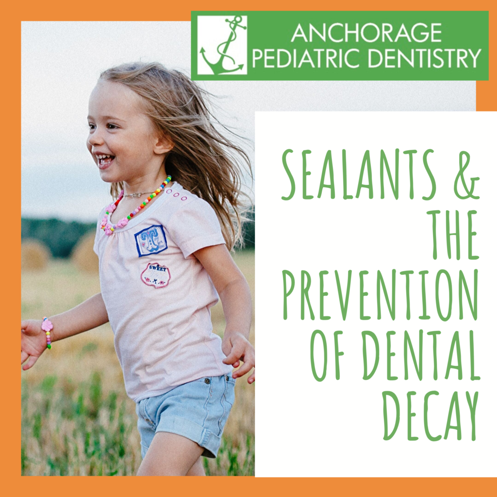 5 things you need to know about dental sealants