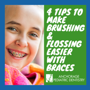 How to Floss with Braces!